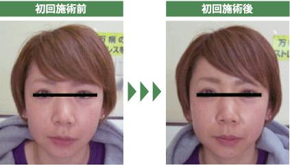 徳島 顔の歪み