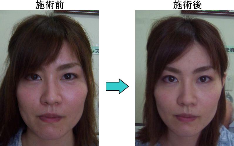 小顔施術前後