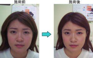 徳島顔の歪み例
