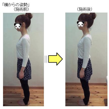 施術前施術後の姿勢の変化1