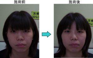 徳島顔の歪み例2